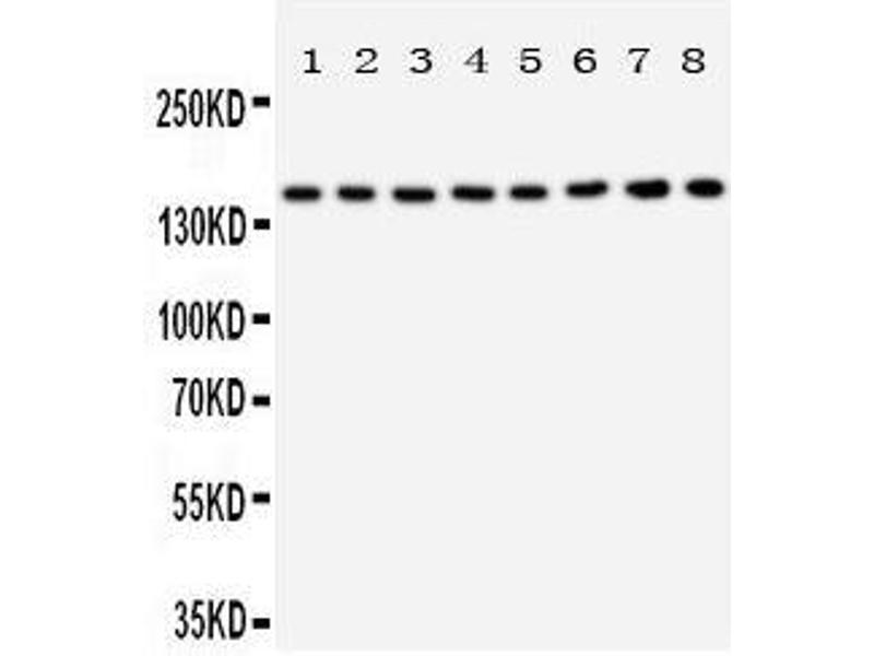 Western Blotting (WB) image for anti-Tuberous Sclerosis 1 (TSC1) (AA 1150-1164), (C-Term) antibody (ABIN3044051)