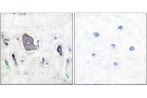 Immunohistochemistry (IHC) image for anti-TRKB antibody (Neurotrophic Tyrosine Kinase, Receptor, Type 2) (pTyr705) (ABIN1531204)