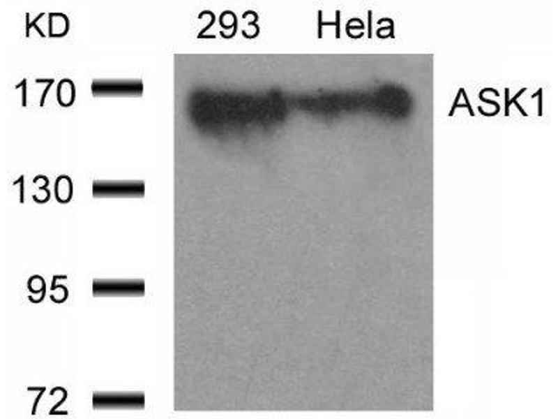 Western Blotting (WB) image for anti-MAP3K5 antibody (Mitogen-Activated Protein Kinase Kinase Kinase 5) (ABIN4281869)