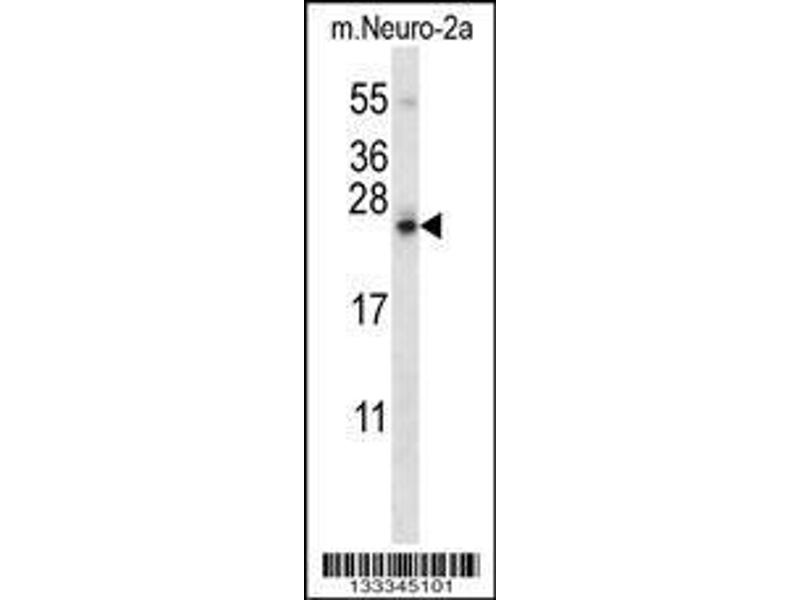 Western Blotting (WB) image for anti-Stromal Cell Derived Factor 2-Like 1 (SDF2L1) (AA 160-189), (C-Term) antibody (ABIN657402)