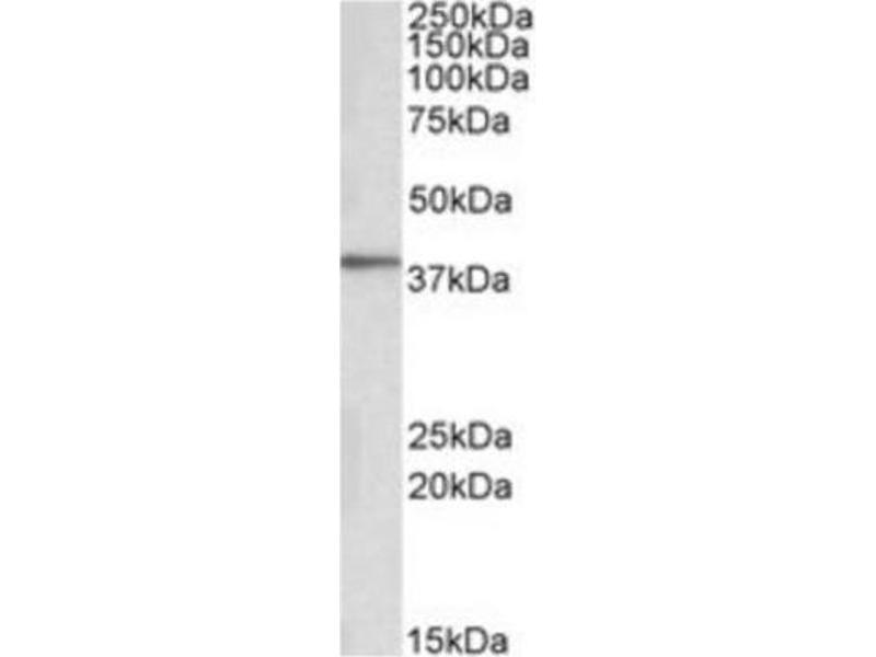 Western Blotting (WB) image for anti-Protein Kinase C, delta Binding Protein (PRKCDBP) antibody (ABIN4347316)