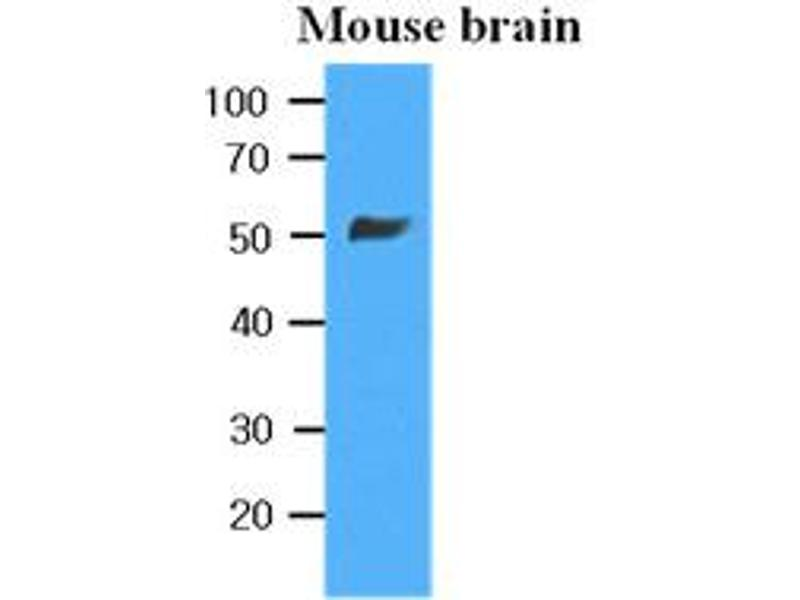 Western Blotting (WB) image for anti-Tubulin, beta 2B (TUBB2B) antibody (ABIN567629)