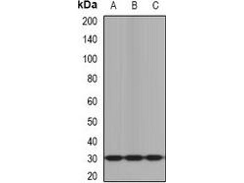 Western Blotting (WB) image for anti-Kallikrein 10 antibody (KLK10) (ABIN2966766)