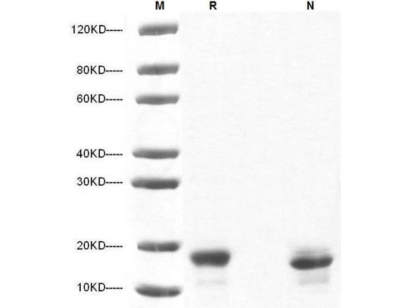 Image no. 1 for Interleukin 10 (IL10) (AA 19-178) (Active) protein (ABIN2018051)