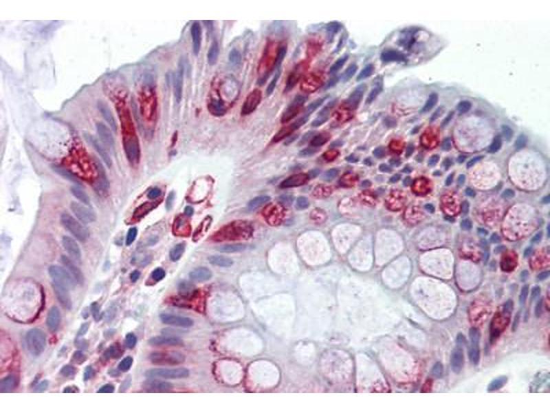 Immunohistochemistry (IHC) image for anti-Adenomatous Polyposis Coli (APC) (C-Term) antibody (ABIN1803997)