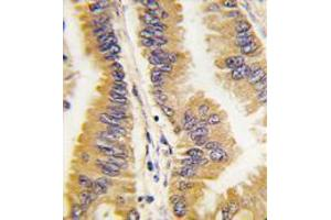 Image no. 1 for anti-Frequently Rearranged in Advanced T-Cell Lymphomas (FRAT1) (C-Term) antibody (ABIN356924)