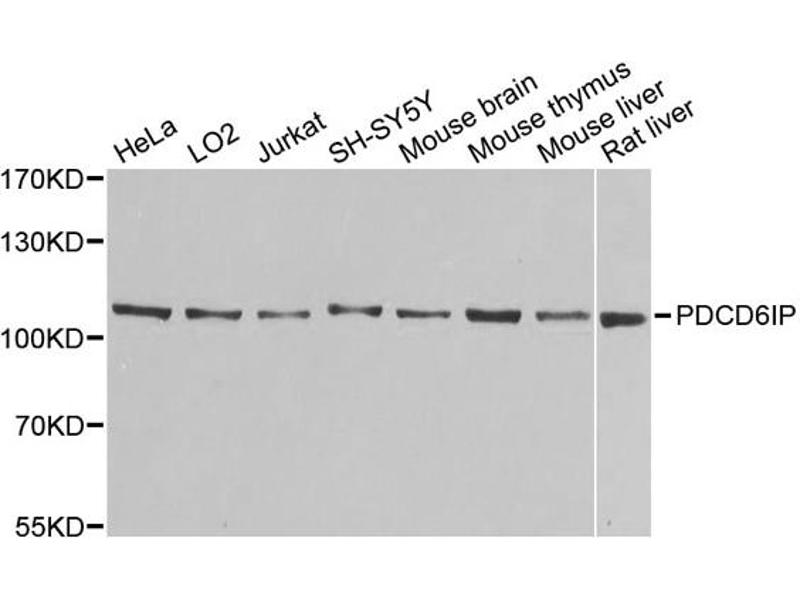 Western Blotting (WB) image for anti-Programmed Cell Death 6 Interacting Protein (PDCD6IP) antibody (ABIN1874065)