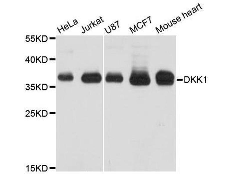 Western Blotting (WB) image for anti-Dickkopf Homolog 1 (Xenopus Laevis) (DKK1) antibody (ABIN5663708)