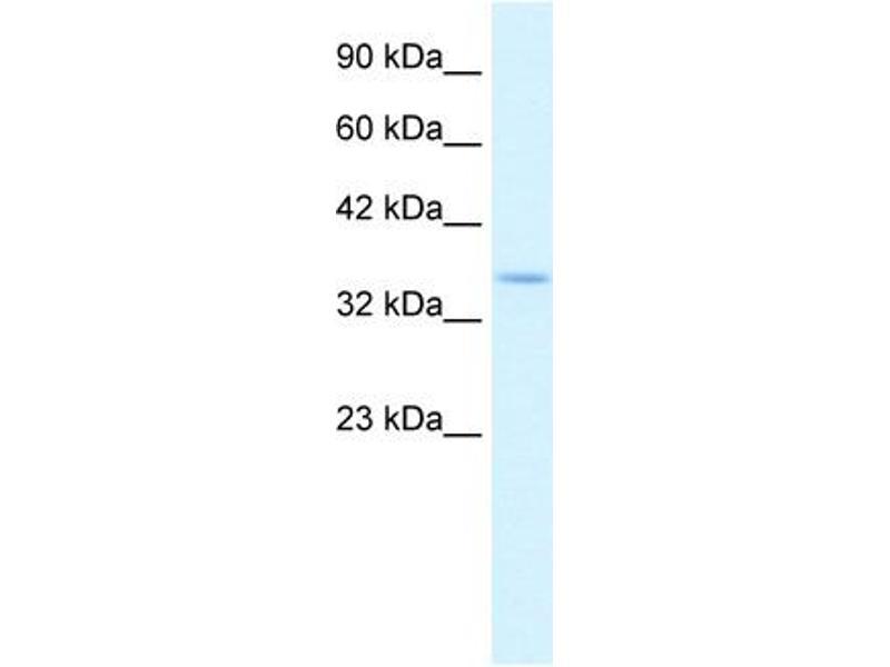 Western Blotting (WB) image for anti-COP9 Constitutive Photomorphogenic Homolog Subunit 5 (Arabidopsis) (COPS5) (N-Term) antibody (ABIN2777618)