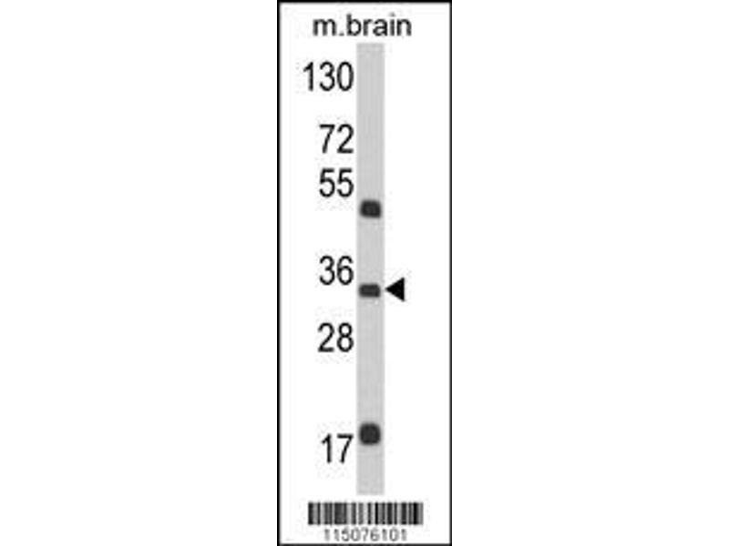 Western Blotting (WB) image for anti-Mannose-6-Phosphate Receptor (Cation Dependent) (M6PR) (AA 35-63), (N-Term) antibody (ABIN389291)