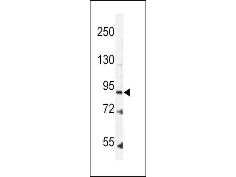 Western Blotting (WB) image for anti-Leptin Receptor antibody (LEPR) (N-Term) (ABIN2489212)