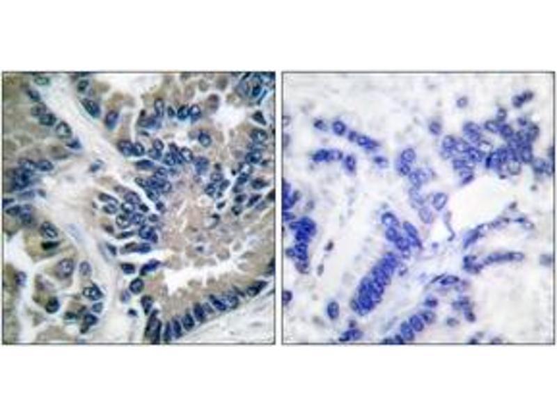 Immunohistochemistry (IHC) image for anti-Signal Transducer and Activator of Transcription 2, 113kDa (STAT2) (AA 656-705) antibody (ABIN1532263)