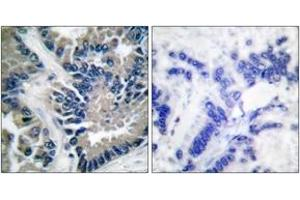 Immunohistochemistry (IHC) image for anti-Signal Transducer and Activator of Transcription 2, 113kDa (STAT2) (AA 656-705) antibody (ABIN1532263)