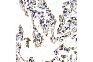 Immunohistochemistry (IHC) image for anti-FIGF antibody (C-Fos Induced Growth Factor (Vascular Endothelial Growth Factor D)) (ABIN1872695)