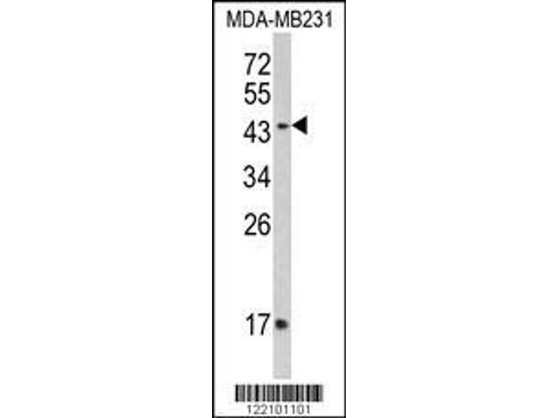Western Blotting (WB) image for anti-IFNGR2 antibody (Interferon gamma Receptor 2 (Interferon gamma Transducer 1)) (AA 308-337) (ABIN652277)