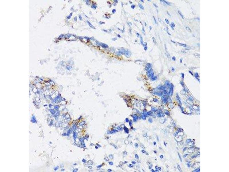 Immunohistochemistry (Paraffin-embedded Sections) (IHC (p)) image for anti-Inhibitor of kappa Light Polypeptide Gene Enhancer in B-Cells, Kinase epsilon (IKBKE) antibody (ABIN3020771)