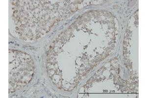 Immunohistochemistry (IHC) image for anti-MAP3K4 antibody (Mitogen-Activated Protein Kinase Kinase Kinase 4) (AA 1201-1300) (ABIN393852)