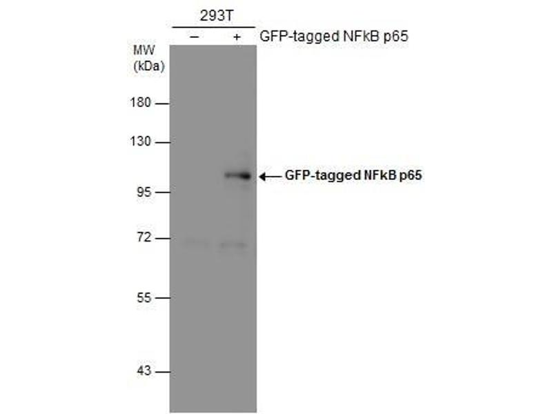 Western Blotting (WB) image for anti-p65 Antikörper (Nuclear Factor-KB P65) (Center) (ABIN2855287)