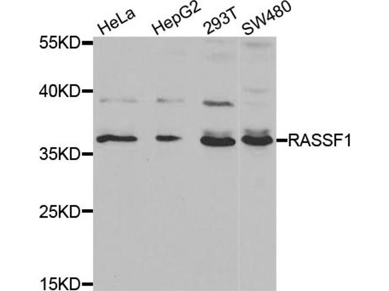 Image no. 2 for anti-Ras Association (RalGDS/AF-6) Domain Family Member 1 (RASSF1) antibody (ABIN6567302)