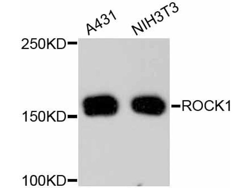 Western Blotting (WB) image for anti-rho-Associated, Coiled-Coil Containing Protein Kinase 1 (ROCK1) antibody (ABIN5997106)