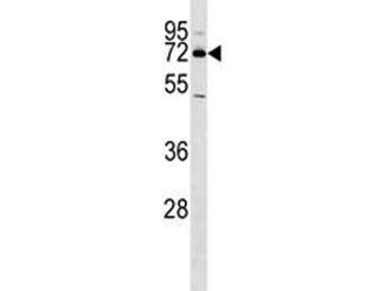 Western Blotting (WB) image for anti-Nuclear Receptor Subfamily 4, Group A, Member 2 (NR4A2) (AA 13-42) antibody (ABIN3032065)
