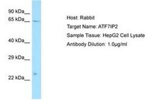Image no. 1 for anti-Activating Transcription Factor 7 Interacting Protein 2 (ATF7IP2) (AA 100-149) antibody (ABIN6750085)