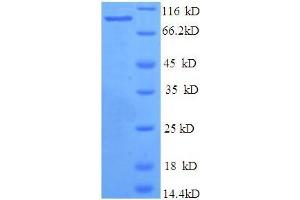Image no. 1 for Bone Morphogenetic Protein 1 (BMP1) (AA 121-986) protein (His tag) (ABIN5709141)