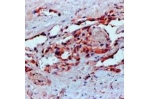 Immunohistochemistry (Paraffin-embedded Sections) (IHC (p)) image for anti-VEGF antibody (Vascular Endothelial Growth Factor) (ABIN152088)