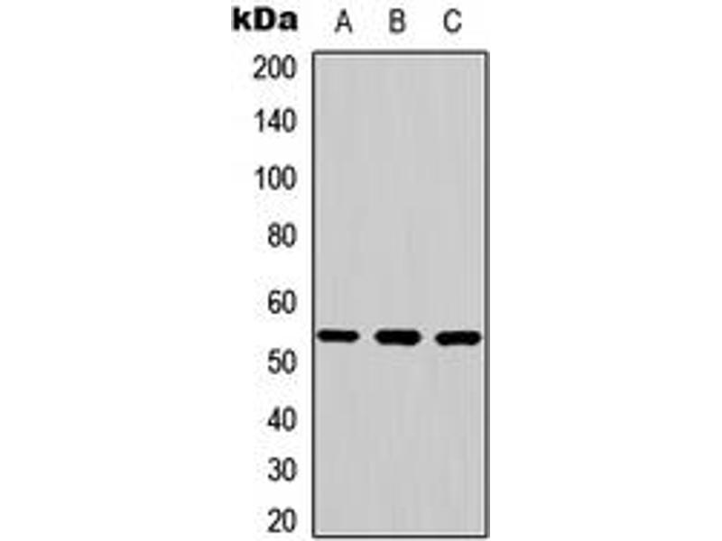 Western Blotting (WB) image for anti-Mitogen-Activated Protein Kinase 9 (MAPK9) (Center) antibody (ABIN2706429)