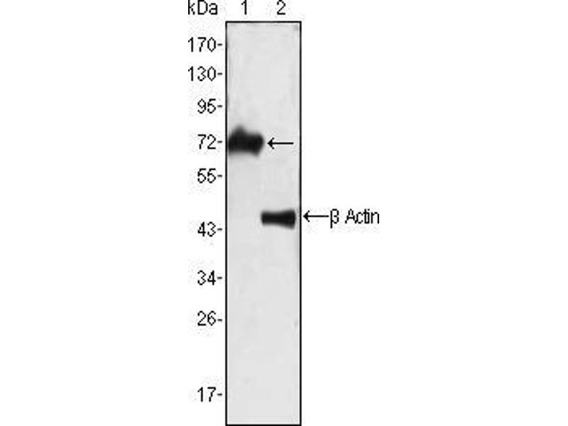 Western Blotting (WB) image for anti-zeta-Chain (TCR) Associated Protein Kinase 70kDa (ZAP70) antibody (ABIN969464)