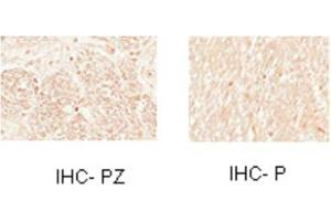 Immunohistochemistry (IHC) image for anti-Myelin Transcription Factor 1 (MYT1) (N-Term) antibody (ABIN2777540)