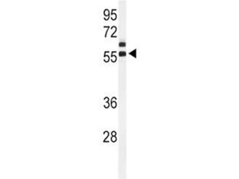 Western Blotting (WB) image for anti-Anti-Mullerian Hormone (AMH) (AA 424-451) antibody (ABIN3029981)