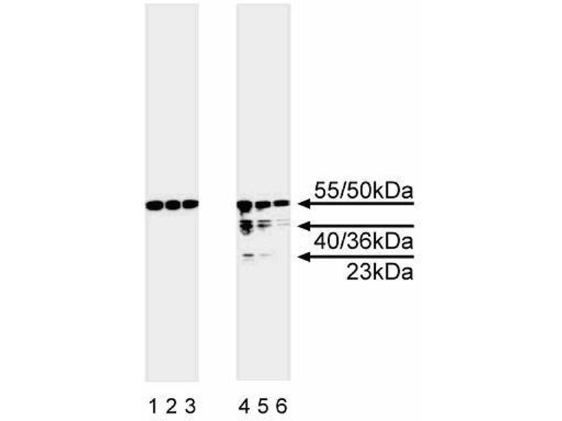Western Blotting (WB) image for anti-Caspase 8 antibody (Caspase 8, Apoptosis-Related Cysteine Peptidase) (full length) (ABIN967334)