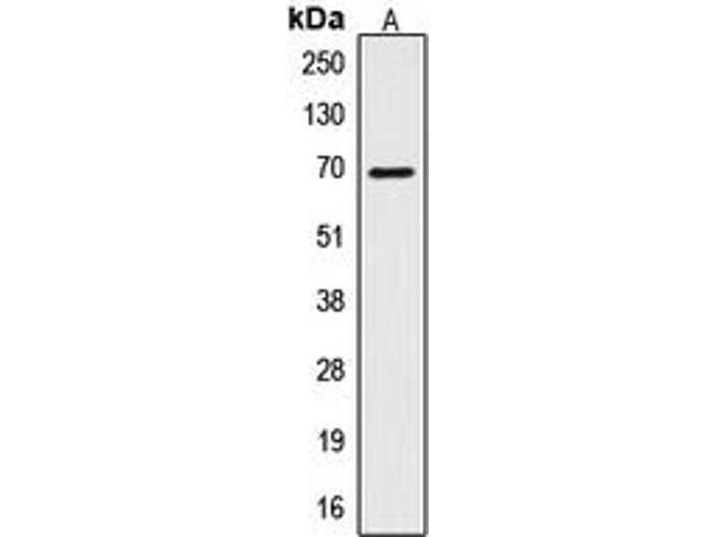 Image no. 2 for anti-CTP Synthase (CTPS) (N-Term) antibody (ABIN2707457)