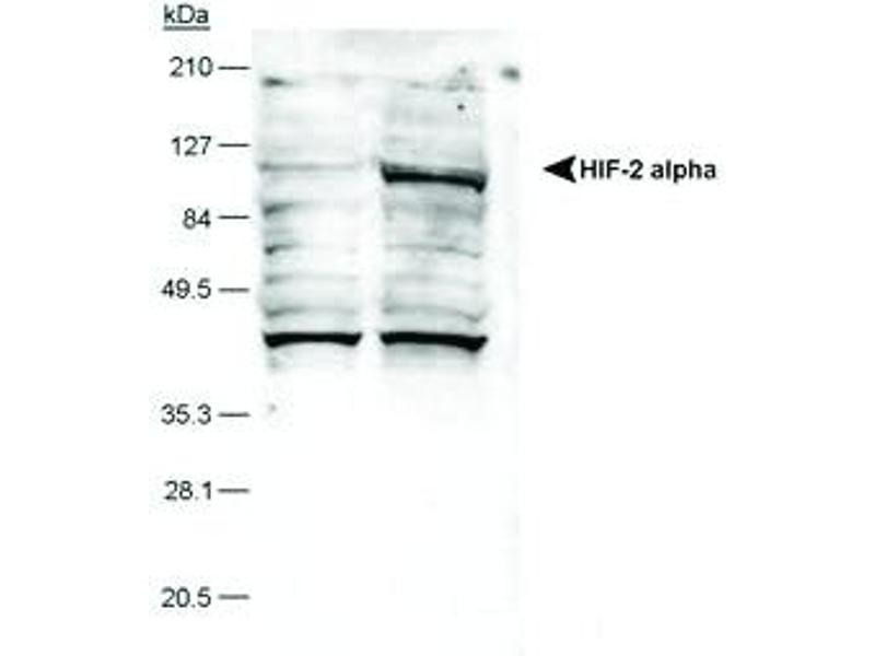 Western Blotting (WB) image for anti-EPAS1 antibody (Endothelial PAS Domain Protein 1)  (HRP) (ABIN250056)