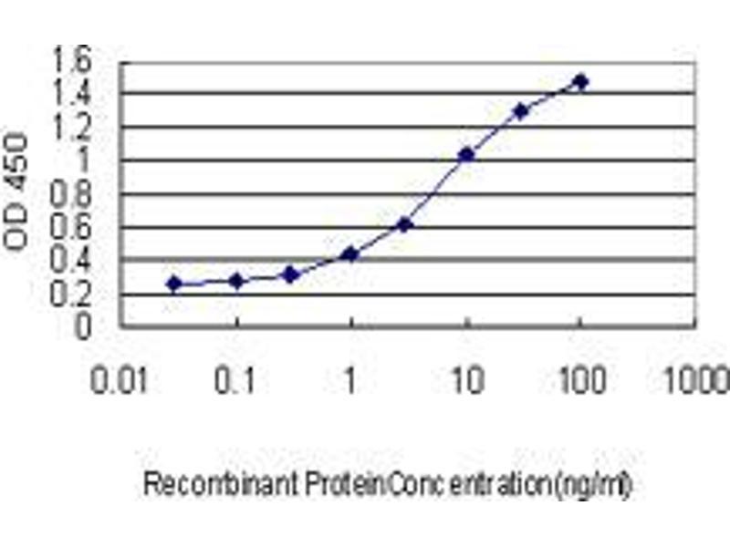 Immunohistochemistry (IHC) image for anti-AEBP1 antibody (AE Binding Protein 1) (AA 912-1014) (ABIN394034)