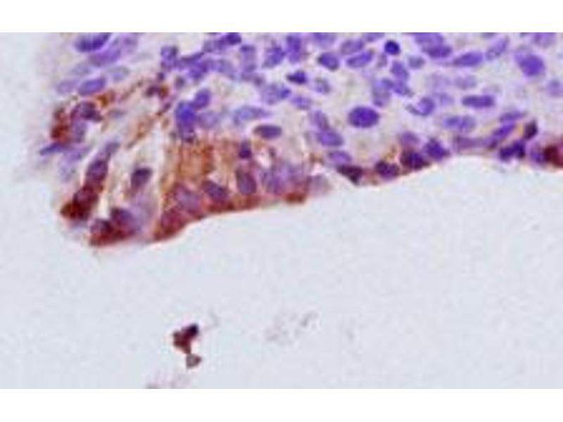 Immunohistochemistry (IHC) image for anti-Chemokine (C-X-C Motif) Receptor 1 (CXCR1) (N-Term) antibody (ABIN1585647)