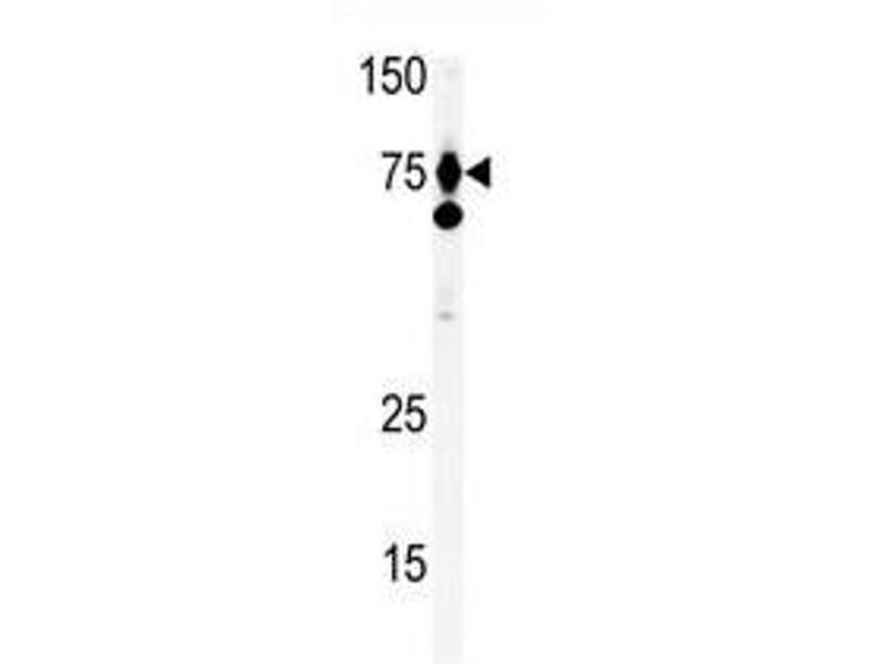 image for anti-Hepatocyte Growth Factor (Hepapoietin A, Scatter Factor) (HGF) (C-Term) antibody (ABIN357192)