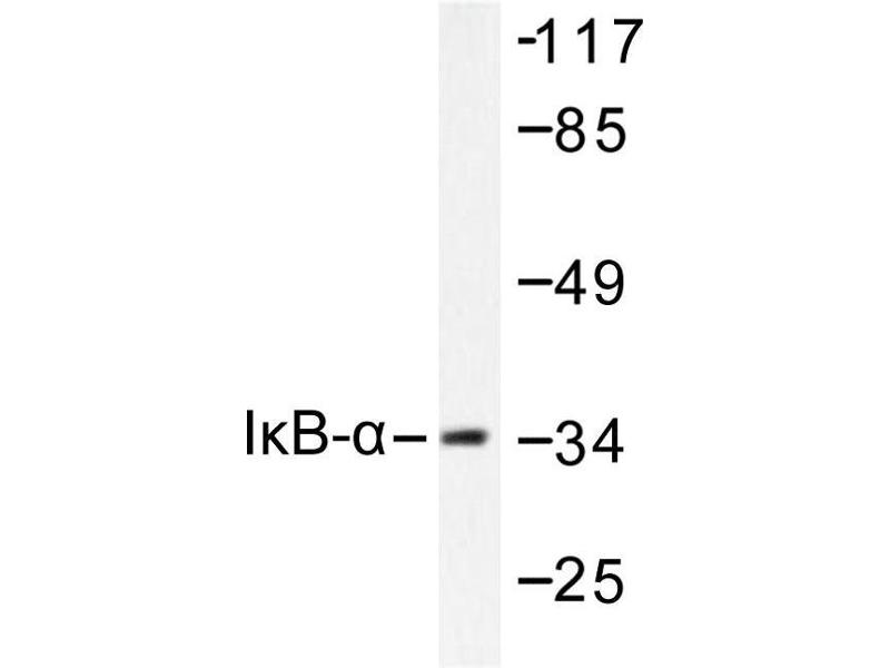 image for anti-NFKBIA antibody (Nuclear Factor of kappa Light Polypeptide Gene Enhancer in B-Cells Inhibitor, alpha) (ABIN265483)