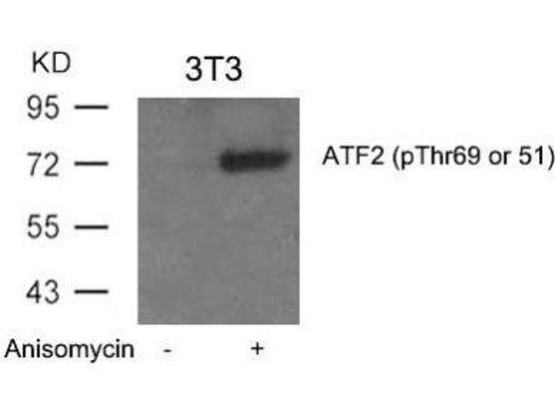 Western Blotting (WB) image for anti-ATF2 antibody (Activating Transcription Factor 2) (pThr69) (ABIN4281971)
