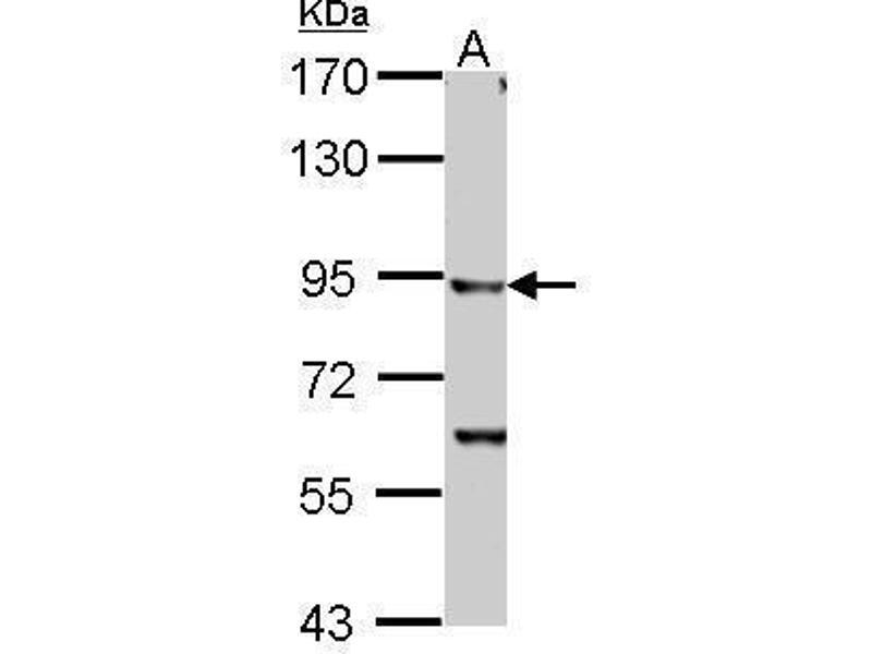 Western Blotting (WB) image for anti-Inhibitor of kappa Light Polypeptide Gene Enhancer in B-Cells, Kinase beta (IKBKB) (C-Term) antibody (ABIN2856162)
