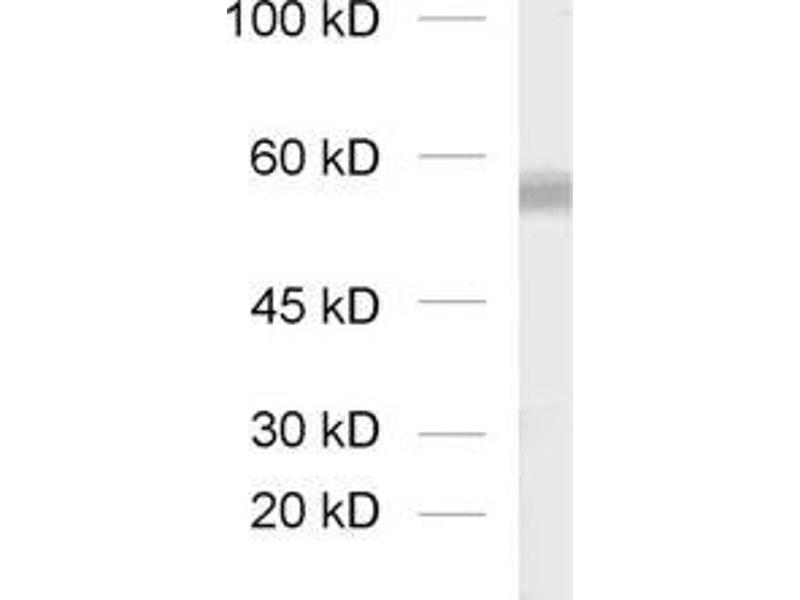 Western Blotting (WB) image for anti-Solute Carrier Family 17 (Sodium-Dependent Inorganic Phosphate Cotransporter), Member 8 (SLC17A8) (AA 543-601), (C-Term) antibody (ABIN1742302)