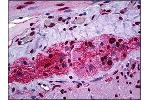 Immunohistochemistry (Paraffin-embedded Sections) (IHC (p)) image for anti-STAT1 antibody (Signal Transducer and Activator of Transcription 1, 91kDa) (pSer727) (ABIN784192)