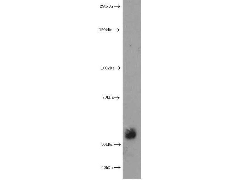 Western Blotting (WB) image for anti-Extracellular Matrix Protein 1 (ECM1) antibody (ABIN2928444)