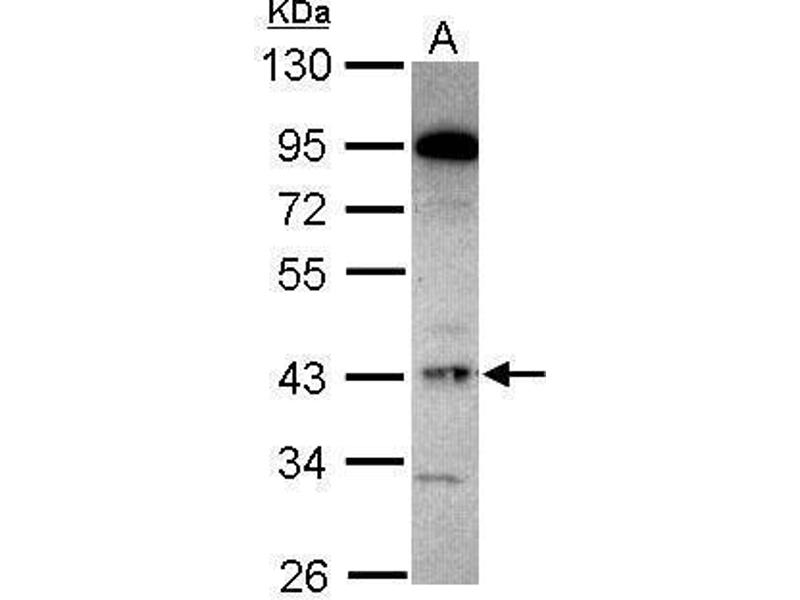 Western Blotting (WB) image for anti-Guanine Nucleotide Binding Protein (G Protein), alpha Inhibiting Activity Polypeptide 2 (GNAI2) (Center) antibody (ABIN2854348)