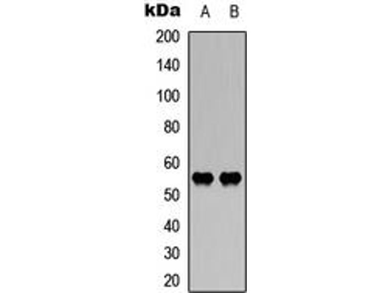 Western Blotting (WB) image for anti-WAS Protein Family, Member 3 (WASF3) (Center) antibody (ABIN2707249)