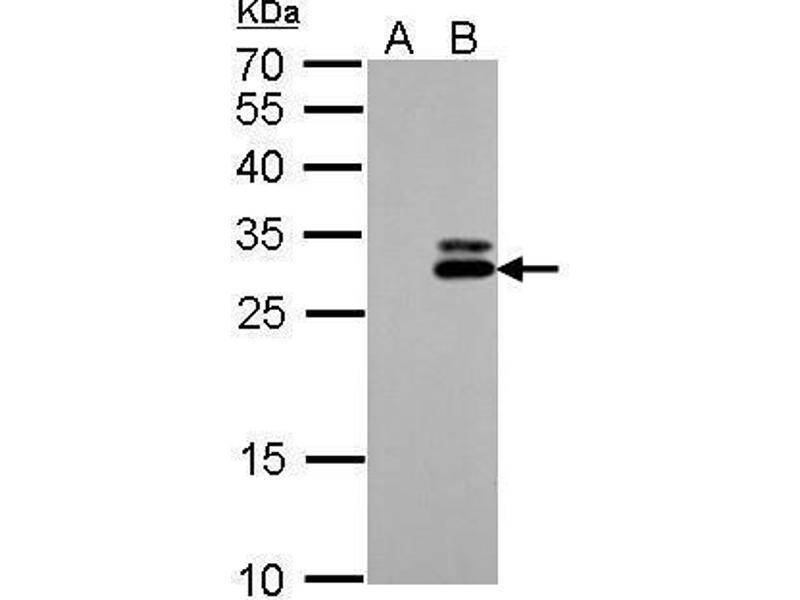 Western Blotting (WB) image for anti-Kallikrein 7 antibody (KLK7) (ABIN2488910)