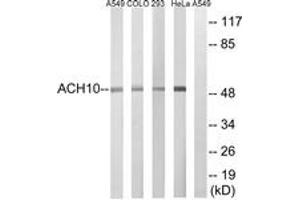 Western Blotting (WB) image for anti-Cholinergic Receptor, Nicotinic, alpha 10 (CHRNA10) (AA 394-443) antibody (ABIN1535099)