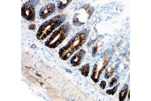 Immunohistochemistry (IHC) image for anti-Solute Carrier Family 12 (Potassium-Chloride Transporter) Member 2 (SLC12A2) (AA 223-241), (N-Term) antibody (ABIN3043994)