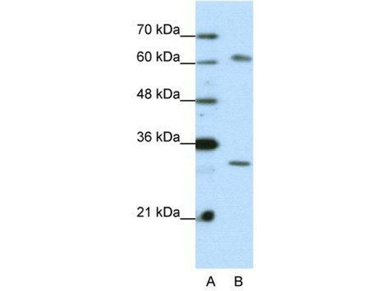 Western Blotting (WB) image for anti-AU RNA Binding Protein/enoyl-CoA Hydratase (AUH) (C-Term) antibody (ABIN2778782)